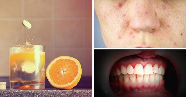 Quels sont les symptômes d'une carence en vitamine C?