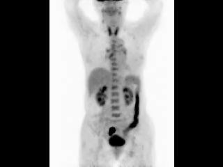 Pet Ct Sigmoid Colon Cancer With Proximal Ischemic Colitis