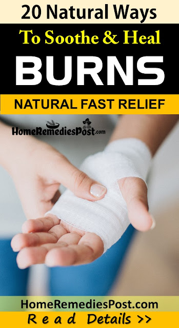 Home Remedies For Burns, Burns Treatment, Burns Home Remedies, Minor Burns, How To Treat Burns, How To Cure Burns, Burns Remedies, Remedies For Burns, Home Remedies For Minor Burns, Cure Burns, Treatment For Burns, Best Burns Treatment, Burns Relief, How To Get Relief From Burns, Relief From Burns, How To Get Rid Of Burns Fast,