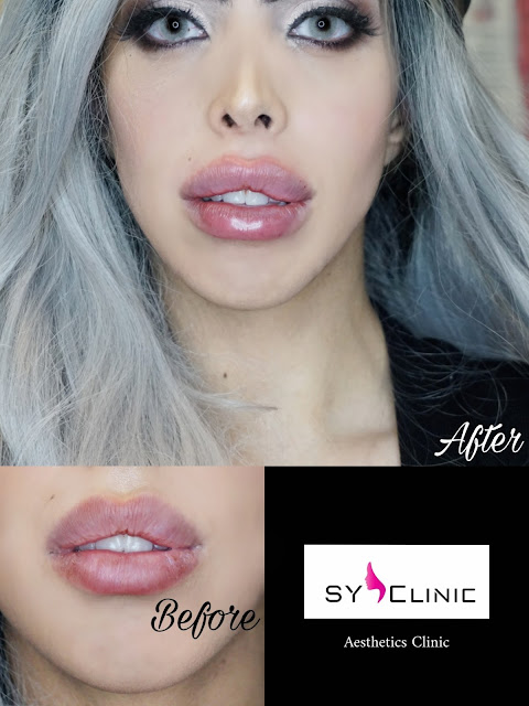 LIPS BEFORE AND AFTER LIP FILLER REVOLAX AT SY CLINIC HARLEY STREET