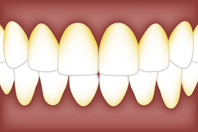 Cara Menghilangkan Karang Gigi Dengan Mudah