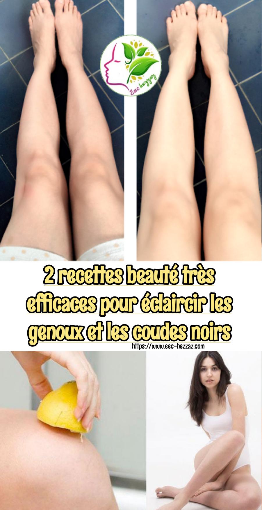 2 recettes beauté très efficaces pour éclaircir les genoux et les coudes noirs