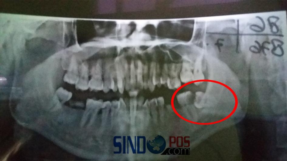 ... Gigi di Pesanggrahan operasi impaksi biaya Perawatan Meski Bayar Dengan  Uang Biaya 100 Pribadi ... 6fb0e4a023