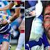 Jogador fica com rosto desfigurado após levar pisão