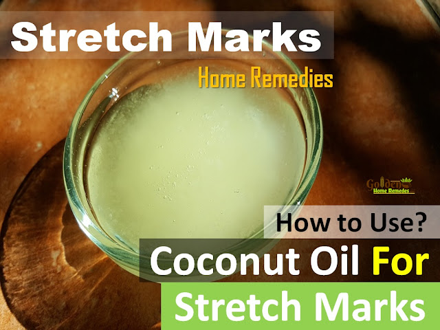 Coconut Oil for stretch marks, how to lighten stretch marks fast with Coconut Oil, how to get rid of stretch marks, coconut oil massage for stretch marks, remove stretch marks, home remedies for stretch marks, stretch marks treatment,
