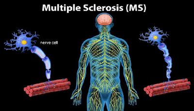 3 Cara  Mudah meningkatkan sistem imun pada tubuh