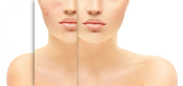 Skincare untuk Kulit Breakout
