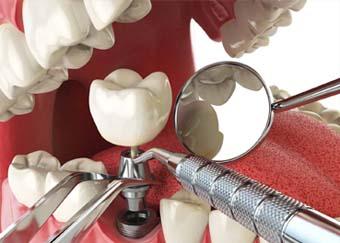 افضل دكتور زراعة اسنان في المدينة المنورة