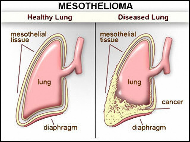 essays on mesothelioma Mesothelioma is a rare but deadly cancer that results from exposure to asbestos find out about the causes, risks, treatment, and prognosis.