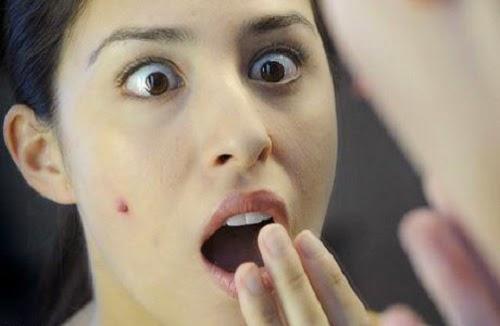 Info Wanita, Tips, Kesehatan, Perawatan Wajah, Jerawat,Menstruasi,