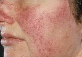 skin concerns