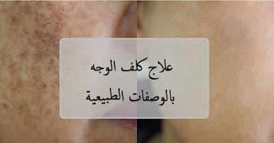 علاج كلف الوجه بالوصفات الطبيعية