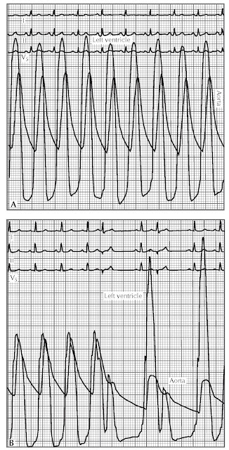 left ventricular apex and aorta in (A) aortic stenosis and (B) hypertrophic obstructive cardiomyopathy.