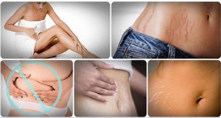 طريقة رائعة للتخلص من علامات تمدد الجلد بشكل طبيعي وبسرعة