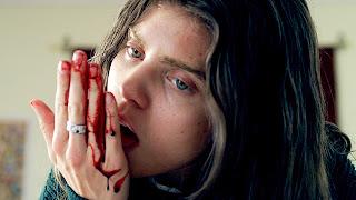 AnnaLynne McCord excision