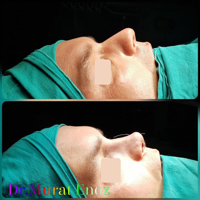 Twisted Nose Aesthetic,Rhinoplasty in Men Istanbul,Crooked Nose Aesthetic Surgery in Istanbul, Crooked Nose Job in Male Patient, Male Nose Aesthetic Surgery,Men's Rhinoplasty in Istanbul,Nose Job Surgery For Men in Istanbul,Male Nose Operation in Turkey,