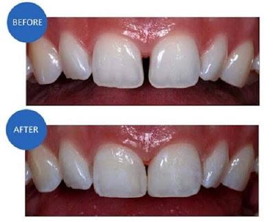 Răng sứ E.Max được thực hiện như thế nào?