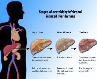 Penyebab Penyakit Sirosis Hati, sirosis hati, sirosis hati bisa disembuhkan, sirosis hati gejala, sirosis hati obat, sirosis hati pdf, sirosis hati penyebab, hati, kanker, penyakit pada hati dan cara pencegahannya