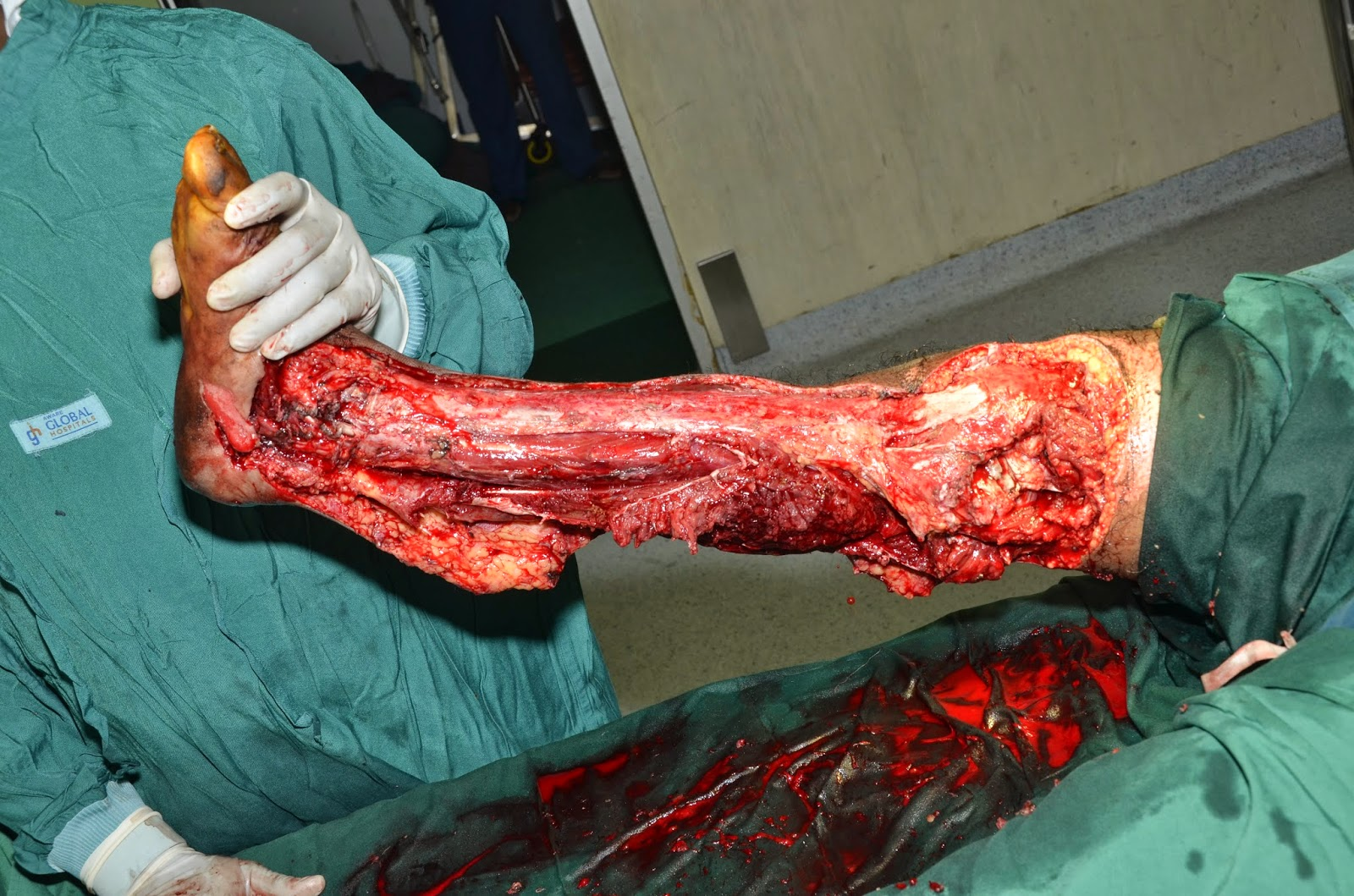 ... COVERAGE OF ANKLE - NEGATIVE PRESSURE WOUND THERAPY - SKIN GRAFTING
