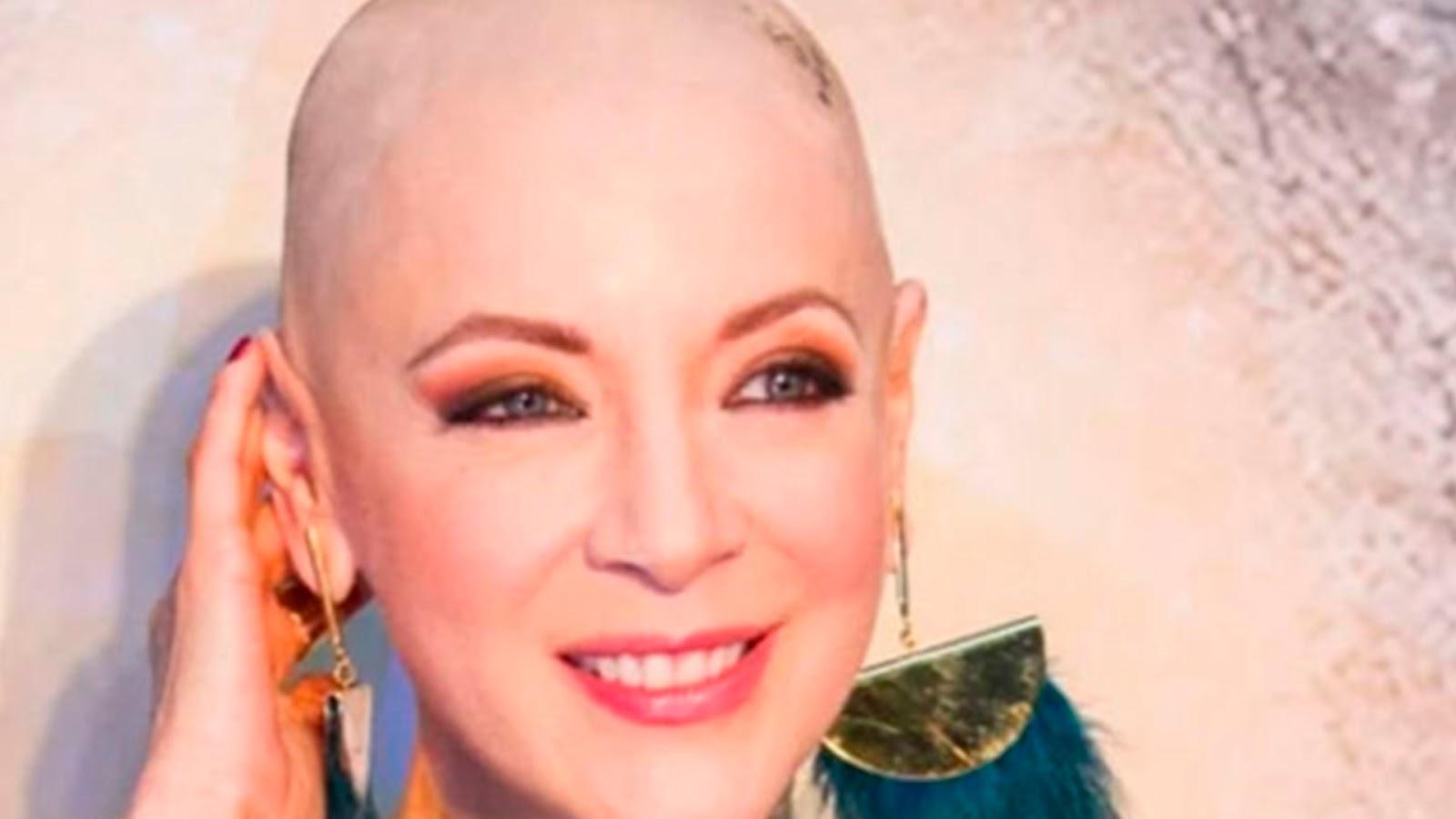 Fallece actriz Edith González víctima de cáncer