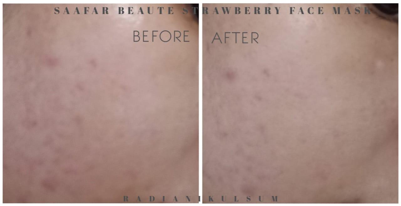 pemakaian Saafar Beaute Strawberry Face Mask di pipi kiri