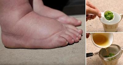 Des conseils pratiques pour soulager les jambes enflées