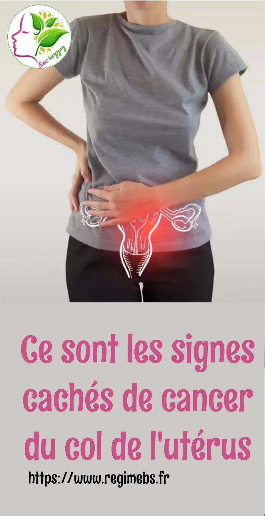 Ce sont les signes cachés de cancer du col de l'utérus