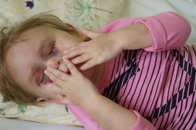 «Она была вся чёрная от побоев». История двухлетней Алисы, избитой родными