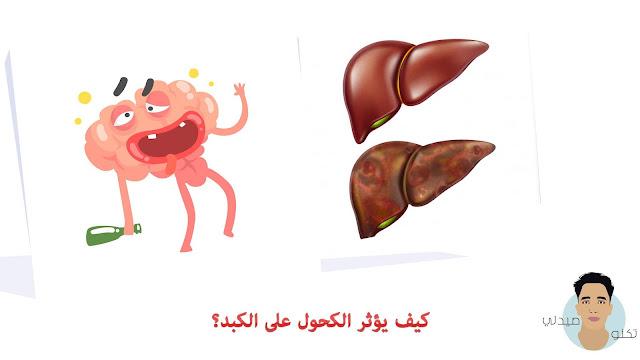 كيف يؤثر الكحول على الكبد؟