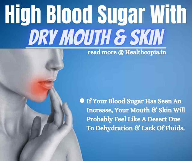 Symptoms Of High Blood Sugar