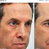 눈 문제에서 해결할 수있는 눈 치료에서 다른 것을 알아보십시오.