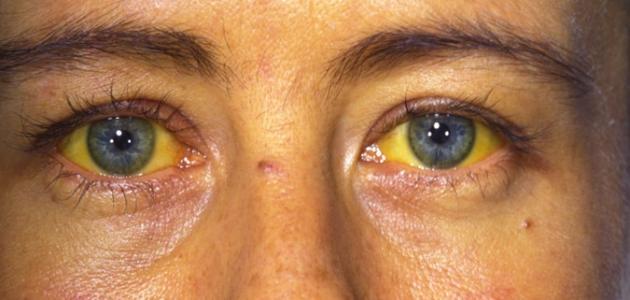 اعراض التهاب الكبد الفيروسي