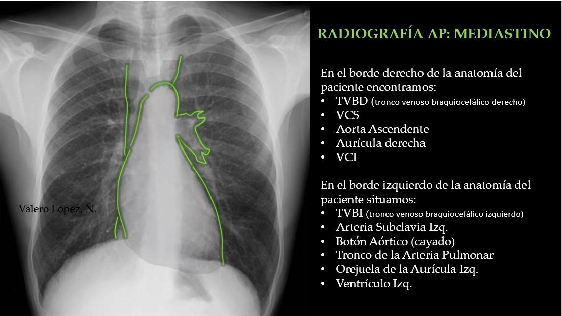 Radiografía de Tórax. Bordes del Mediastino. TC, TAC.