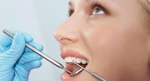 Gambar Penyebab Karang Gigi Dan Cara Pencegahannya