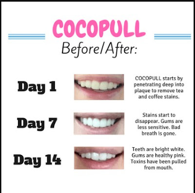 Oil Pulling for Dental