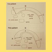 Pancreas | Common Errors, Locations & Abnormalities