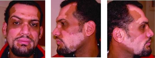 Paciente antes del tratamiento con monobenzona