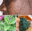 Your PIMPLES will disappear! If you use the Juice from this Natural Leaf