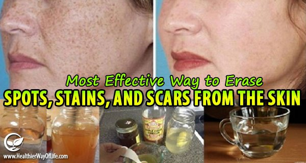 The Quickest and Most Effective Way to Erase Spots, Stains and Scars from the Skin!