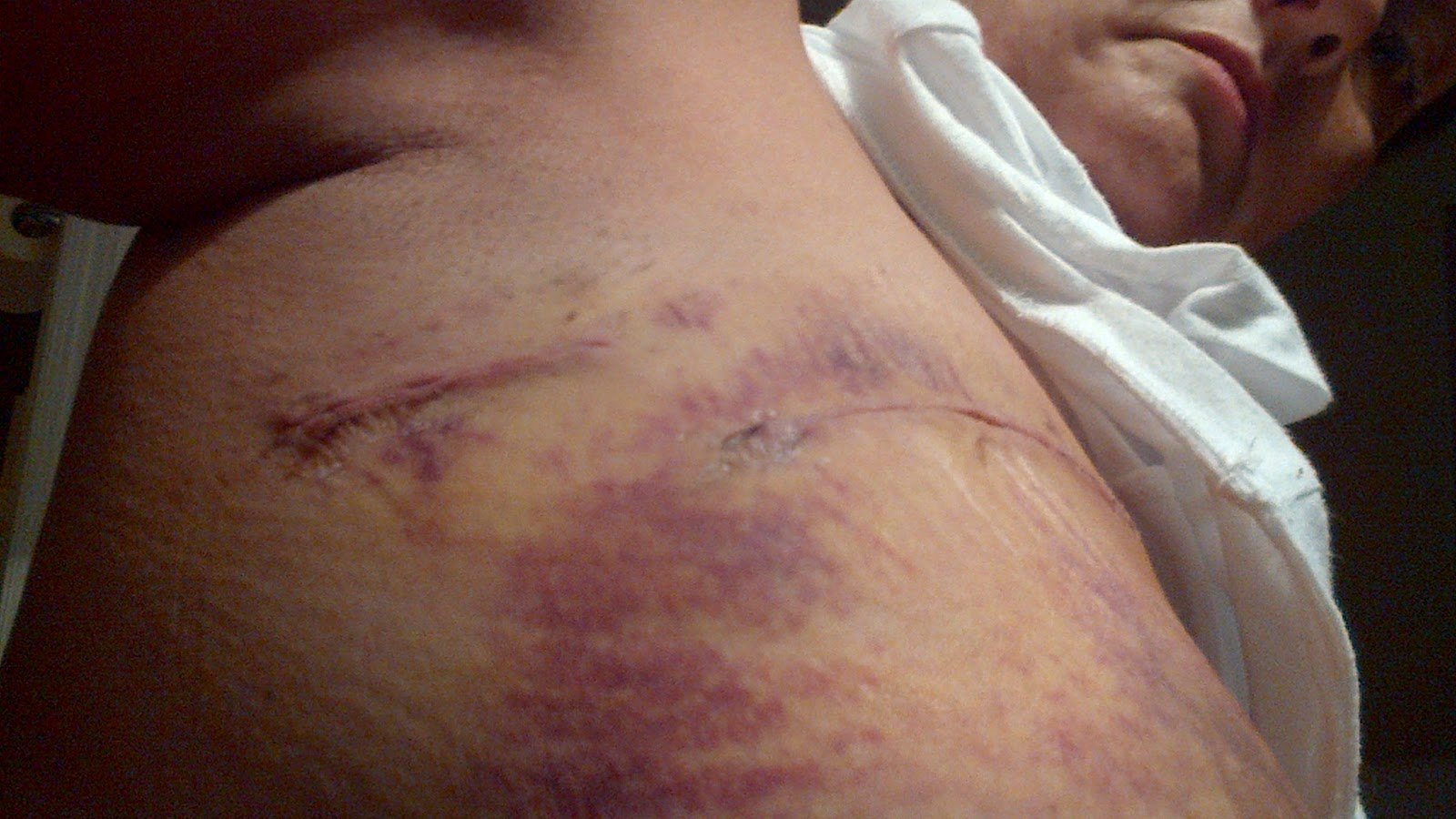 biopsy of lactating breast jpg 1080x810
