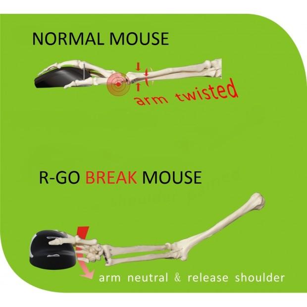 Mouse Ergonomis yang Akan Bantu Kamu Jaga Kesehatan di Depan Komputer