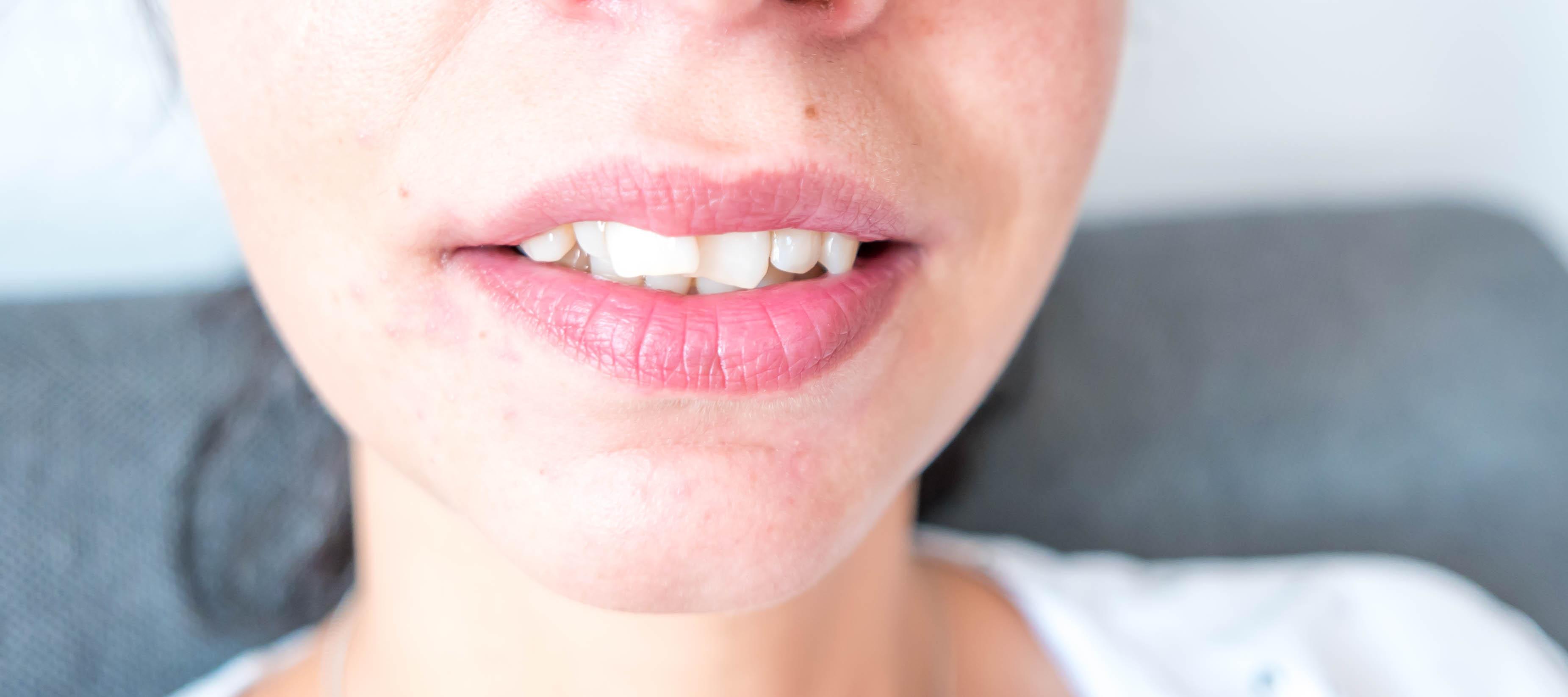Skuteczne i efektowne wybielanie zębów w domu