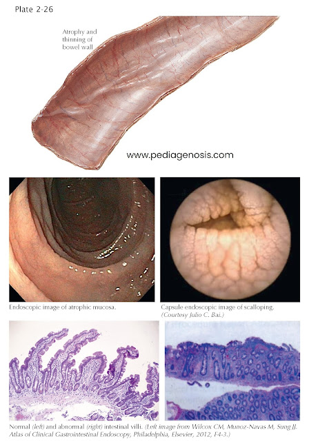 ENDOSCOPIC AND HISTOLOGIC FINDINGS