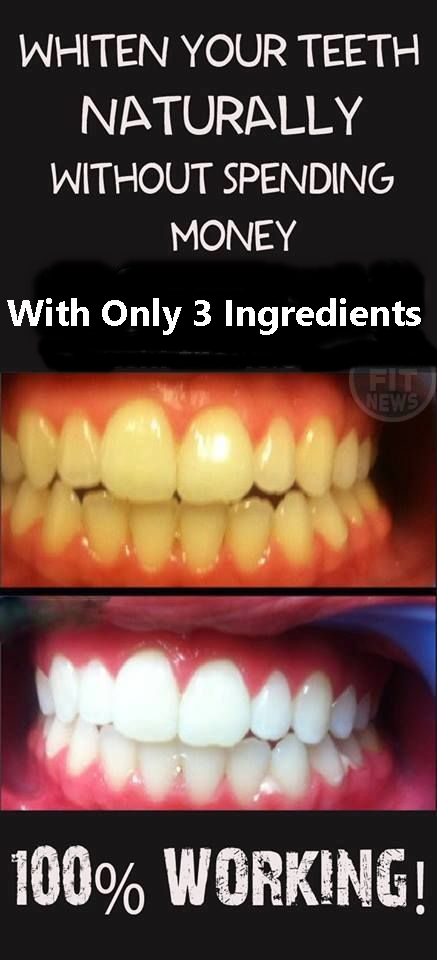 Whiten Your Teeth Naturally Without Spending Money