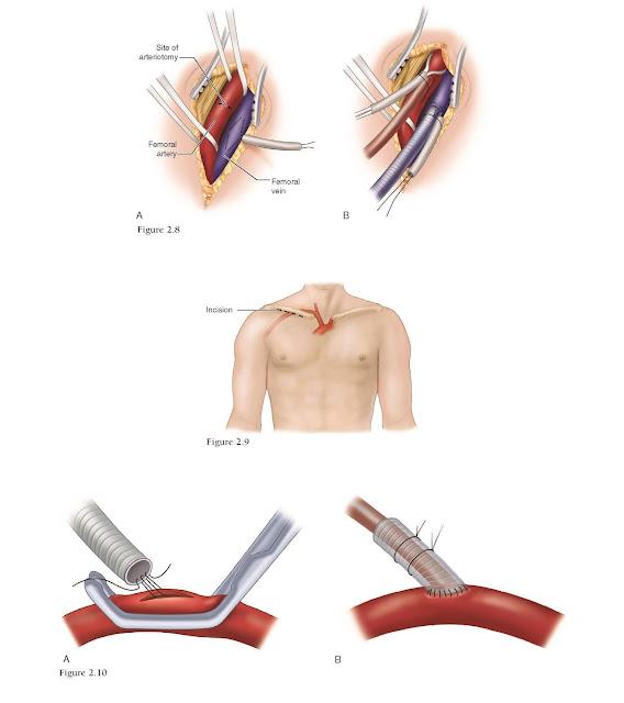 Axillary Artery Cannulation