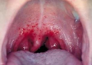 Titik refleksi untuk mengobati radang tenggorokan