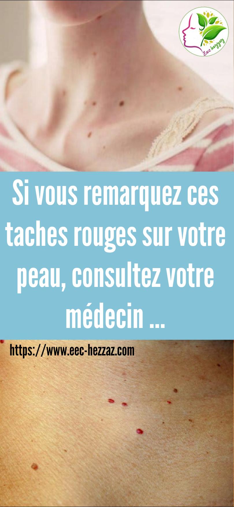 Si vous remarquez ces taches rouges sur votre peau, consultez votre médecin ...
