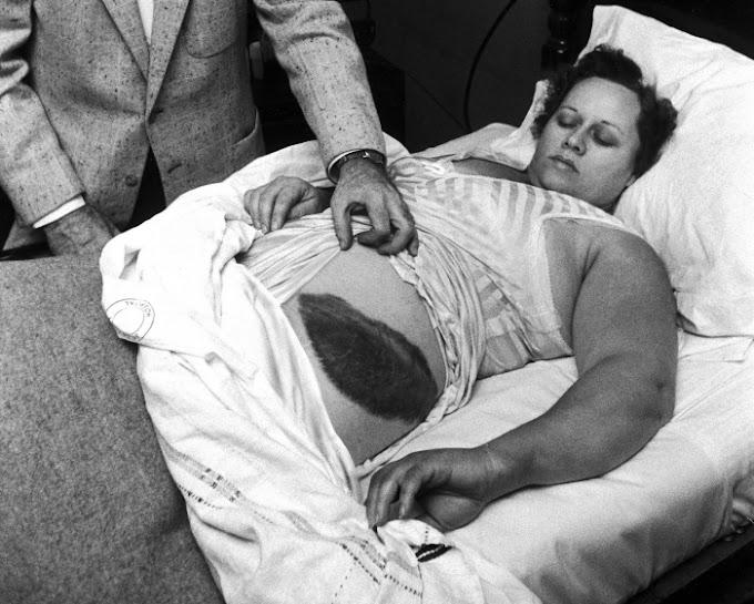 Dünyanın En Bahtsız İnsanı Ann Hodges