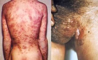 Pengobatan Herbal Penyakit Sipilis