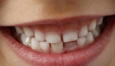 gigi susu anak